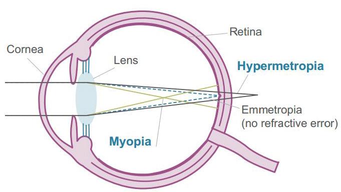 röviden mi a myopia és a hyperopia