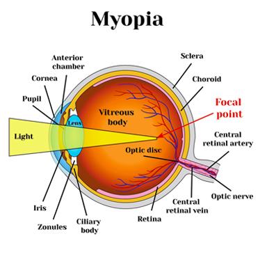 van-e egyszerre myopia és hyperopia